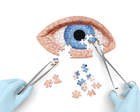 Eye operation (vision correction) puzzle concept: hands of surgeon with surgical instruments (tools) performs eye (ocular) surgery