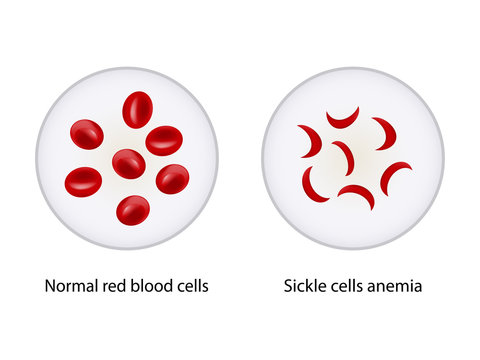 Comparison between Normal red blood cells and Sickle cells anemia