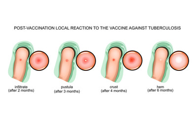 response to vaccination against tuberculosis