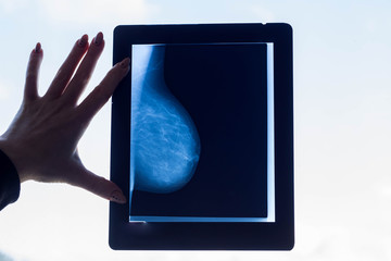 Doctor looks at a breast mammography image