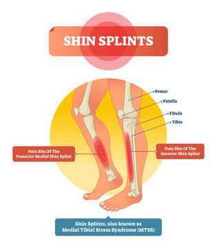 Shin splints vector illustration. Leg muscle sport trauma and bone pain.
