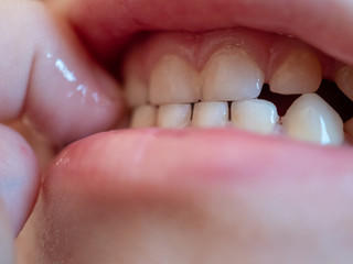 Red lips, even white teeth and pink tongue. Baby finger in mouth. A boy of 3 years. Macro close up