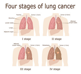 Four stages of lung cancer