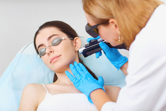 Laser hair removal on the face of a young woman in a cosmetology clinic. Cosmetlog removes the hair on the girl's face with a laser.