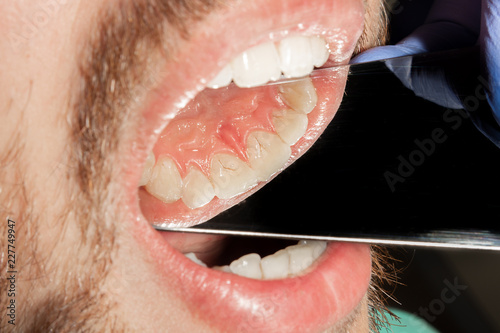 tartar close-up on the lower anterior incisors  Dental hygiene of