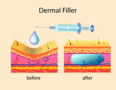 Vector illustration with cosmetic filler or Dermal fillers on light background