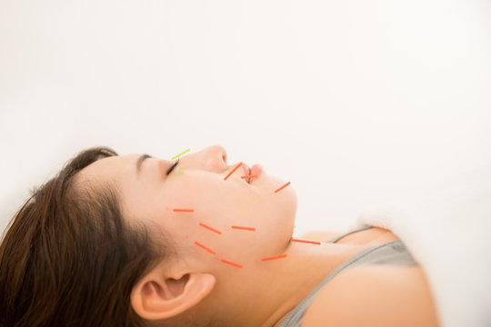 美容鍼灸の施術を受ける若い女性