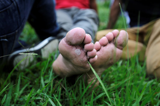 Blister feet from one of the Hondurans who are fleeing poverty and violence are seen resting after a long walk part of their journey in a caravan toward the United States in Ocotepeque