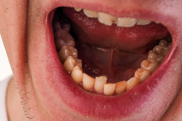 Malocclusion. Crowding of the teeth of the lower jaw. Close-up of a man mouth with crooked teeth.