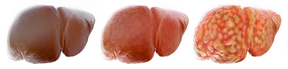 Realistic stages of a fatty liver - 3D Rendering