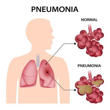 Pneumonia concept background. Realistic illustration of pneumonia vector concept background for web design