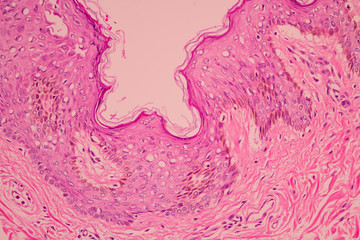 View in microscopic of pathology cross section tissue ductal cell carcinoma or adenocarcinoma diagnosis by pathologist in laboratory.H and E stain.Criteria of breast cancer.Medical concept.