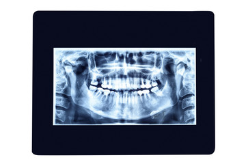 X-ray photo of teeth. Isolated on white background