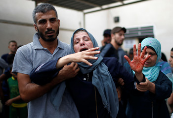 Mother of a Palestinian, who was killed an Israeli air strike, reacts as her hand is stained with his blood at a hospital in the northern Gaza Strip