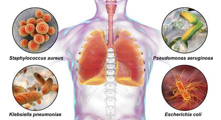 Human respiratory pathogens, bacteria that cause nosocomial pneumonia, 3D illustration. Staphylococcus aureus, Pseudomonas aeruginosa, Klebsiella pneumoniae and Escherichia coli