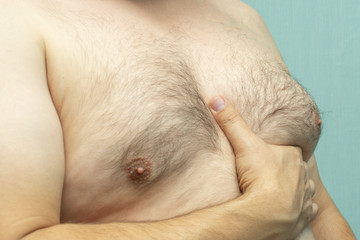 fat white middle-aged man with Gynecomastia, enlarged breast