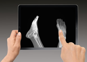 Close-up of woman holding digital tablet - x-ray image of foot