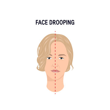 Face drooping concept