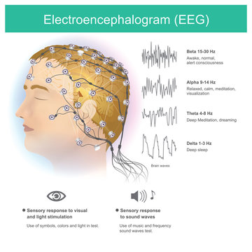 Electroencephalogram (EEG). The use of electrodes to read small electromagnetic waves from the human brain.