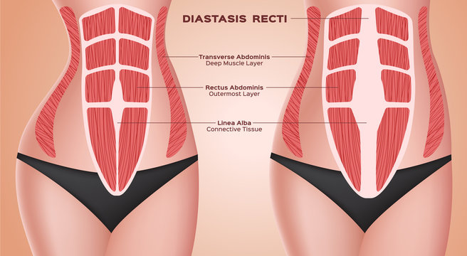 diastasic recti . abdominal . before after pregnancy vector / anatomy