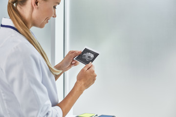 Happiness. Side view portrait of beautiful lady in white lab coat holding baby sonogram. Copy space in right side