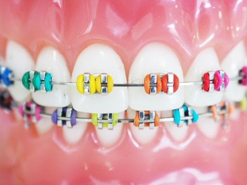 Close up orthodontic model and dentist tool - demonstration teeth model of multi color of orthodontic bracket or brace
