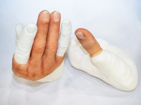 Prosthetic fingers Hand prosthesis. Amputation of the fingers. Layout prostheses. Hand injury Medical services.