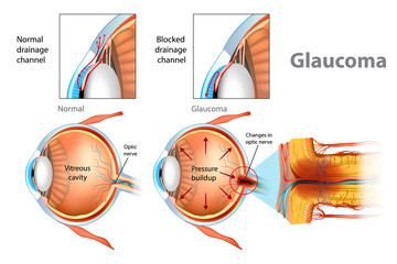 Glaucoma. Illustration showing open-angle glaucoma. Intraocular pressure in the back of the eye