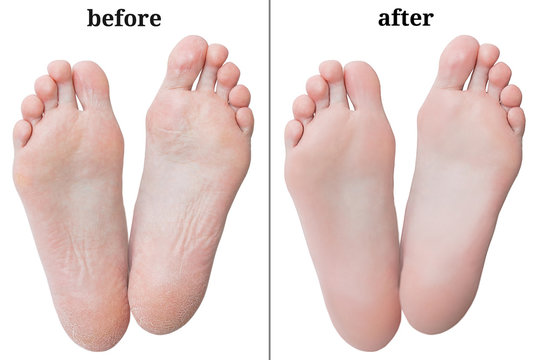 Women's feet before and after peeling. White isolate.
