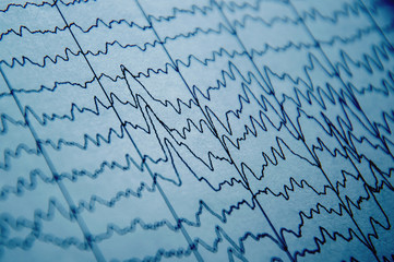 EEG wave in human brain, brain wave patterns on electroencephalogram, problems in the electrical activity of the brain