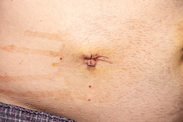 The abdomen with medical stitches after surgery by laparoscopy. Man's belly after laparoscopy. Metal staples.