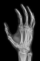 X-ray of fracture of metacarpal bone