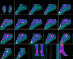 CT foot image