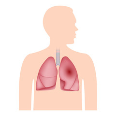 Human lungs icon. Realistic illustration of human lungs vector icon for web design isolated on white background