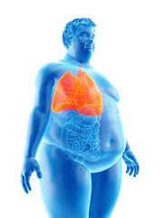 3d rendered medically accurate illustration of an obese mans lungs