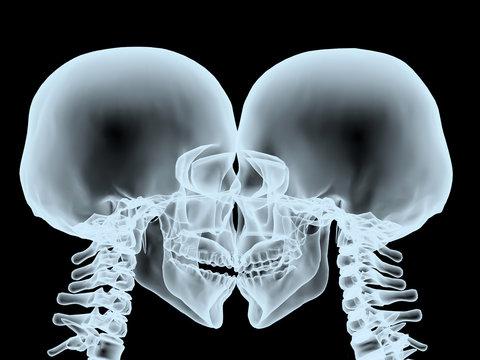 X-Ray kiss close up