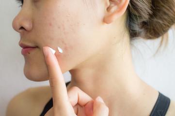 Shot of woman preparing for applying acne cream for solve her problem skin.