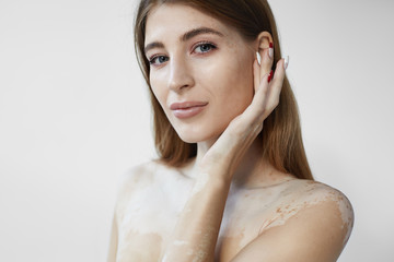 People, beauty, femininity, cosmetology and skincare concept. Picture of charming attractive young woman with smooth skin with white vitiligo spots posing indoors, touching her face and smiling