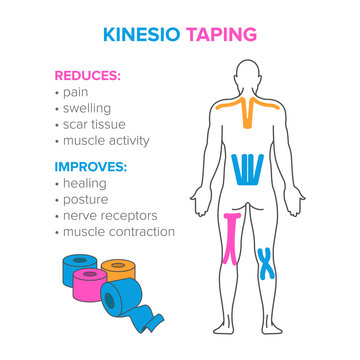 Kinesio taping. Reduses and improves