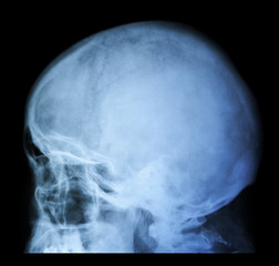 X Ray of Skull - Cranium Medical Analysis - Xray, MRI, CT Diagnostic Scan Photo