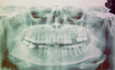 Panoramic x-ray image of teeth. Some teeth removed, problem with teeth