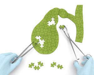 Gallbladder puzzle concept: hands of surgeon with surgical instruments perform gall bladder surgery as a result of cholelithiasis, cholecystitis, cholecystectomy, biliary dyskinesia