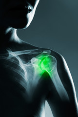 Human shoulder joint in x-ray, on gray background. The hand is highlighted by green colour.