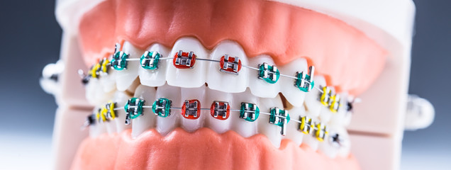 Close-up of a orthodontic model jaws and teeth with braces