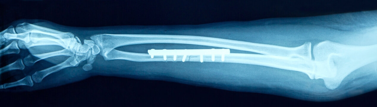 Film x-ray show fracture shaft of arm insert plate and screw for fix arm's bone