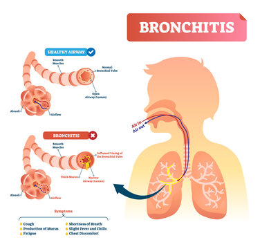Bronchitis vector illustration. Lung disease diagnosis with symptoms.