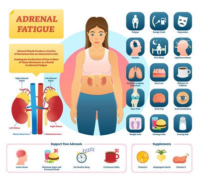 Adrenal fatigue vector illustration. List of glands disease symptoms.