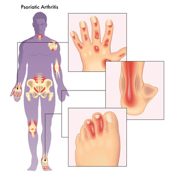 Illustration of human body showing close up of anatomy effected by psoriatic arthritis.