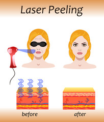 Laser peeling, vector illustration with before after effect