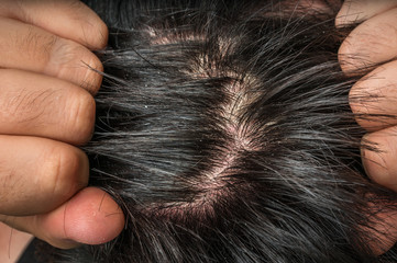 Closeup view of hair of a man with dandruff